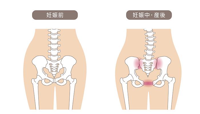 骨盤子連れOKトレーニングで産後骨盤矯正が安い